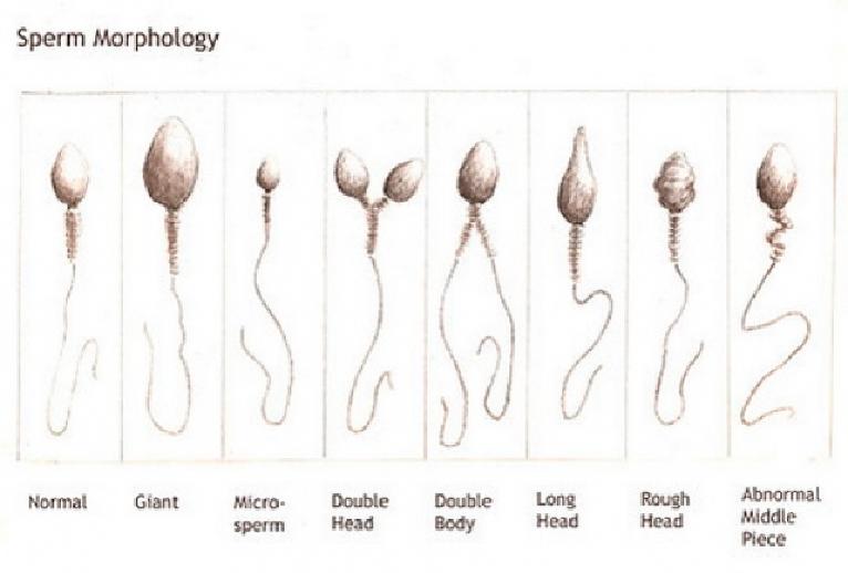 Цитоплазматические капли сперматозоидов